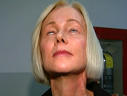 Marilyn Liesz is suing her plastic surgeon for negligence