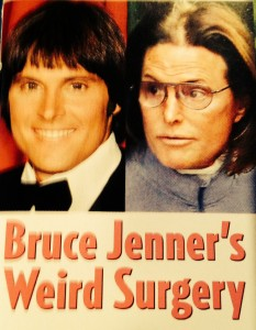 bruce jenner plastic surgery gone wrong