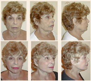 67 year old face and neck lift