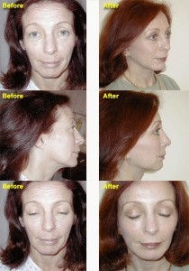 dr wigoda forehead lift