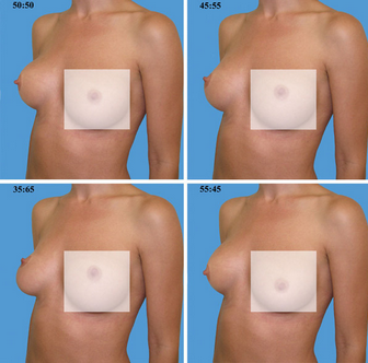 RealSelf Perfect Breast Shape