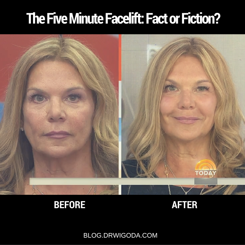 five minute facial plastic surgery dr wigoda