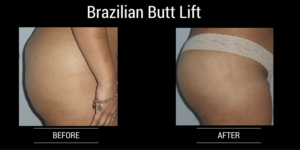 before and after brazilian butt lift dr wigoda ft lauderdale