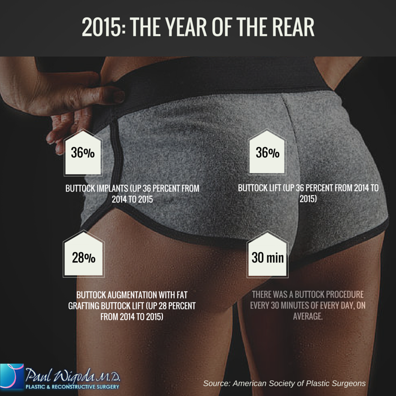 Butt Lifts Stats Dr Wigoda